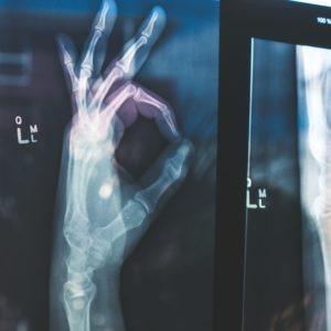 radiografia de mano ilustrativa
